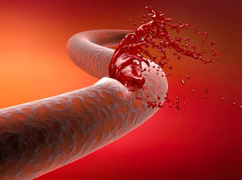 Previene hemorragias